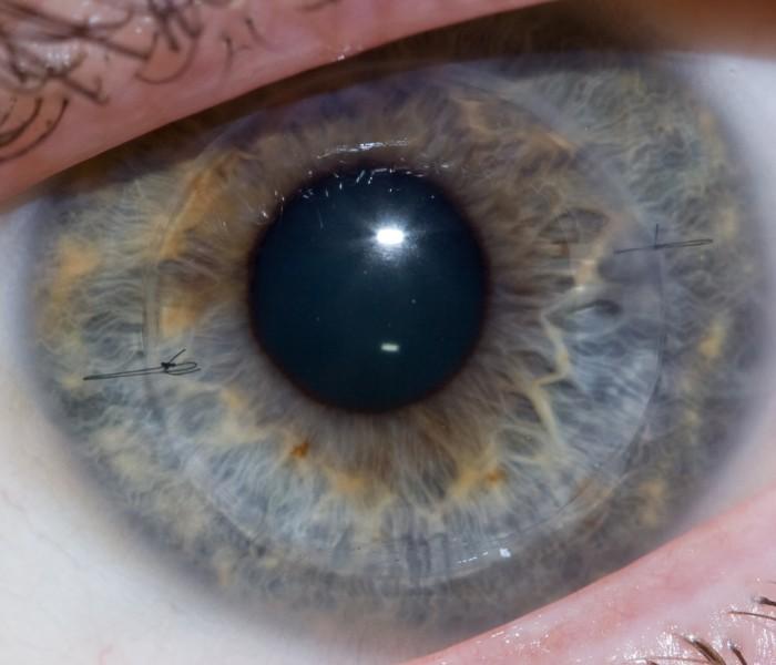 Una cornea artificiale salva la vista ad un bambino