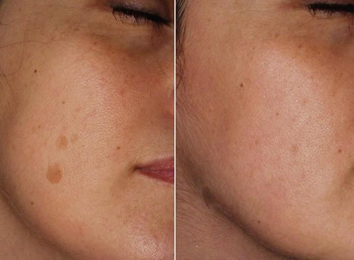 La terapia dei capelli del laser per le donne / ridelo.eu