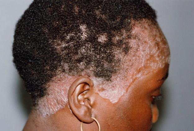 Eczema al bambino della ragione e il trattamento di una fotografia