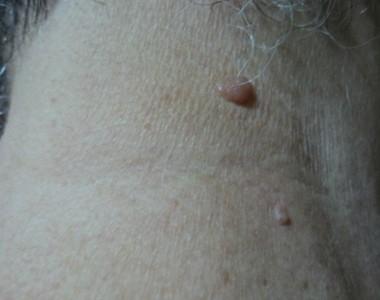 Come trattare le antiestetiche escrescenze carnose