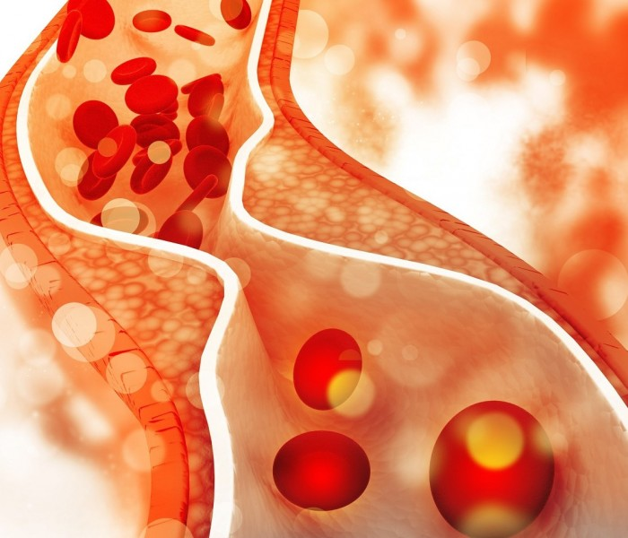 Grazie ad un'iniezione il colesterolo potrà essere ridotto fino al 70%