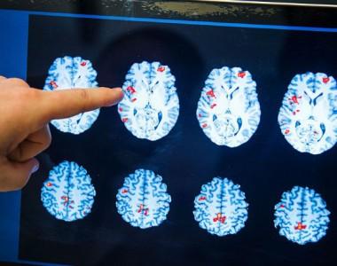 """Anche il cervello ha la sua """"rete fognaria"""""""