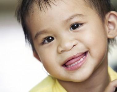 Labbro leporino, una malformazione poco conosciuta