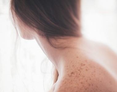 Le macchie della pelle
